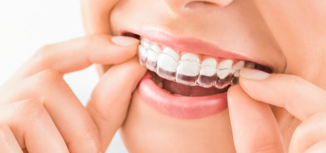 Invisalign treatment in Alsip il
