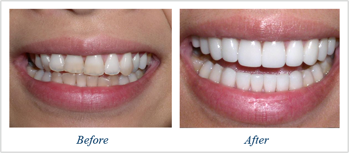 Before and after Dental veneers