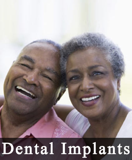 dental implants dentists in Alsip il